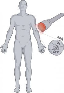 Safe Laser kezelés Pécelen